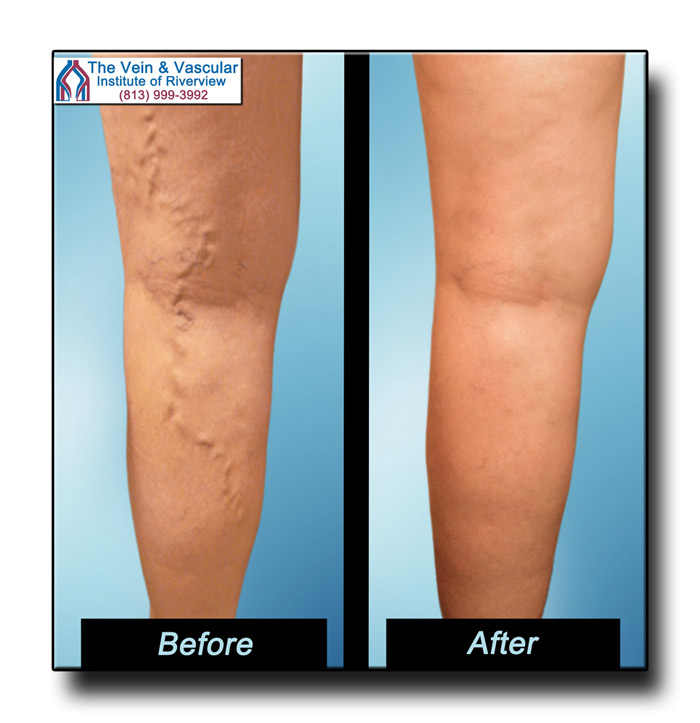 Laser Vein Removal Before and After Pictures Riverview FL