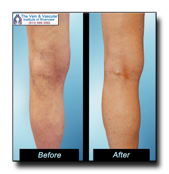 Riverview FL Spider Vein Removal Using Sclerotherapy Before and After Pictures