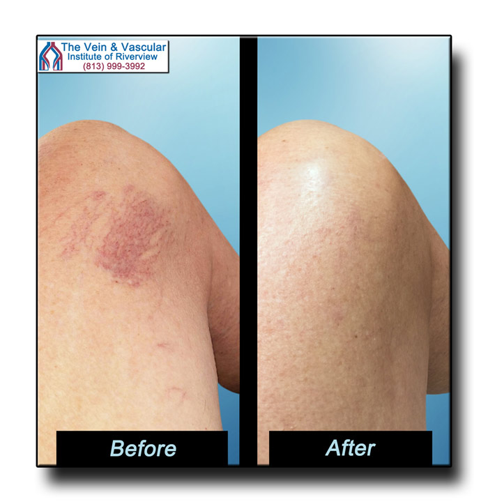 Riverview FL Spider Veins Treatment