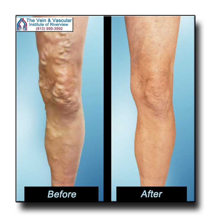 Riverview FL Varicose Vein Removal Patient Pictures