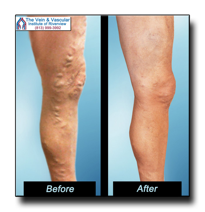 Riverview FL Varicose Veins Treatment Before and After Photos