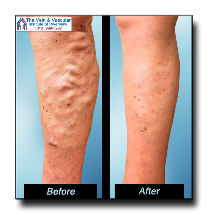 Varicose Vein Surgery in Riverview Great Results