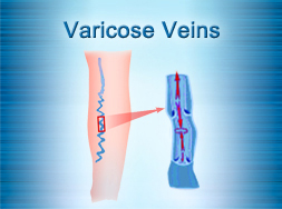 Varicose Veins Treatment