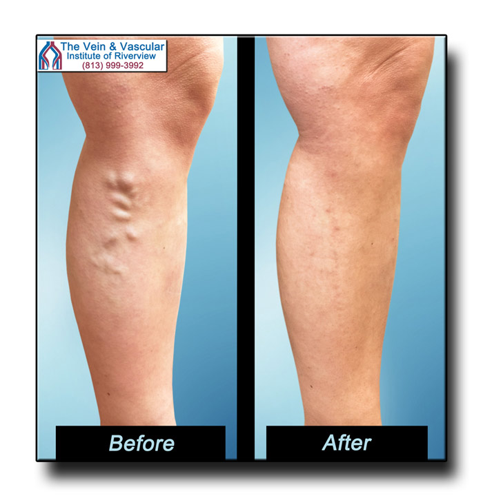 Vein Center Riverview FL Varicose Vein Surgery Before and After Pics