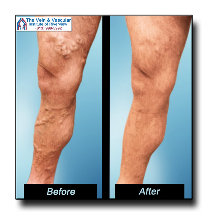 Vein Removal Surgery Riverview FL Pictures