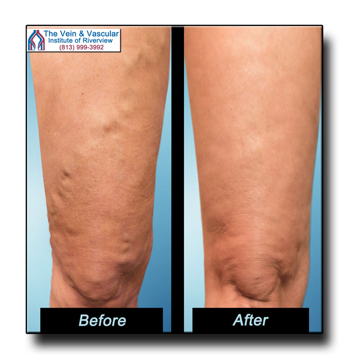 Vein Treatment Riverview FL Patient Pictures