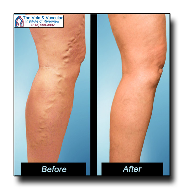 Vein Treatment Riverview FL Pictures