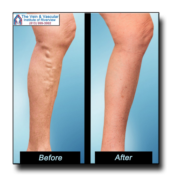 Vein Treatment in Riverview FL Review Pictures