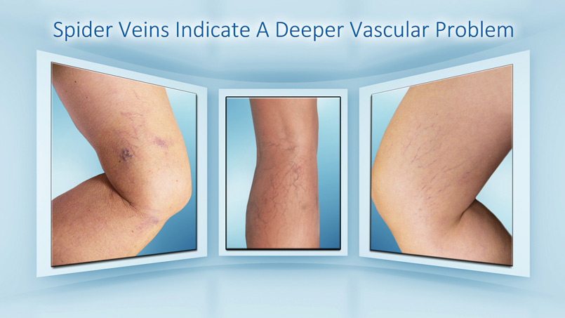 Riverview FL Spider Veins