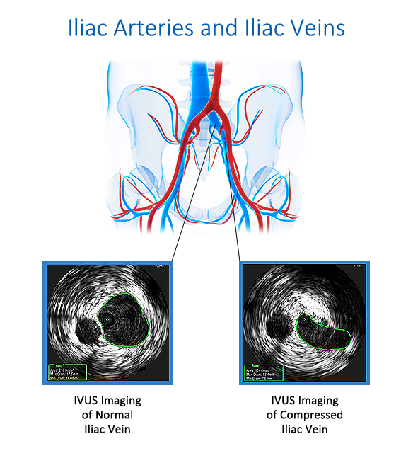 IVUS Imaging of May-Thurner Syndrome