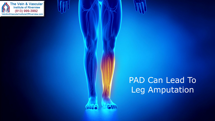 Peripheral Artery Disease Treatment in Riverview FL To Prevent Leg Amputation