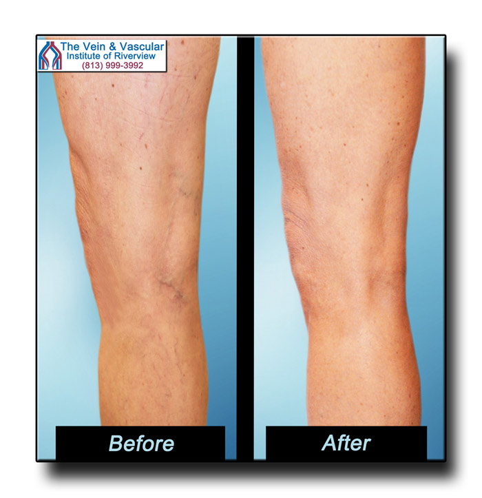 Riverview FL Spider Vein Treatment Patient Pictures