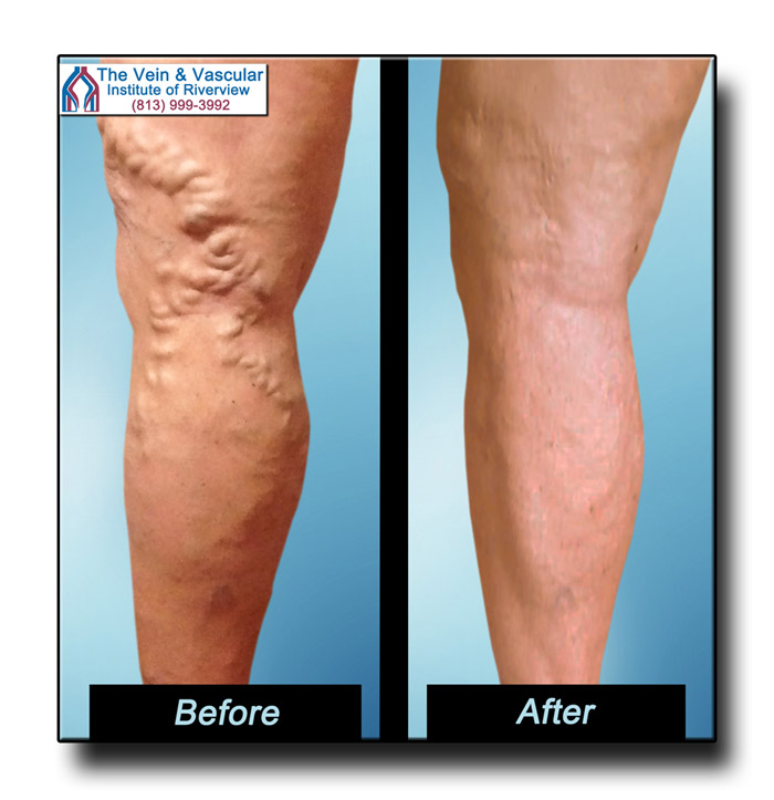 Riverview FL Varicose Vein Removal Before and After Pictures
