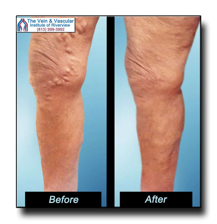 Riverview FL Vein Center Patient Pictures