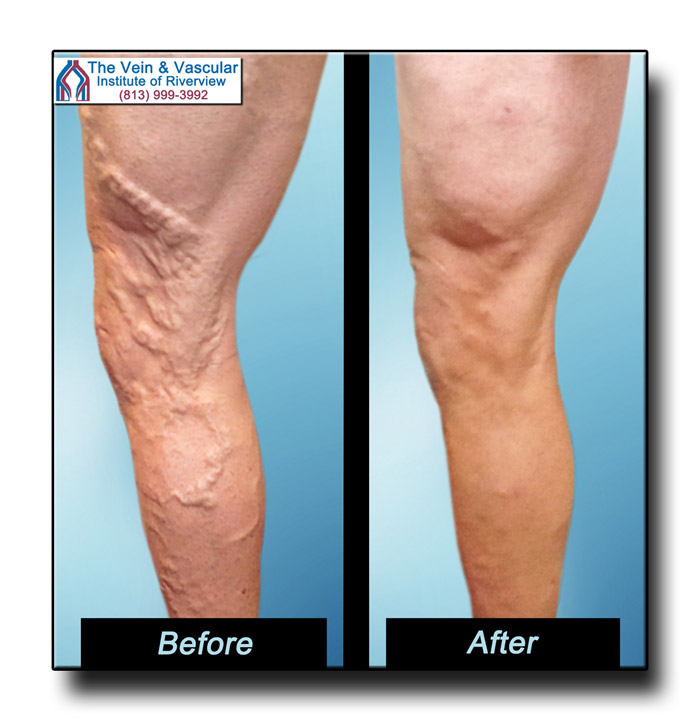 Riverview FL Vein Specialist Vein Removal Patient Pictures