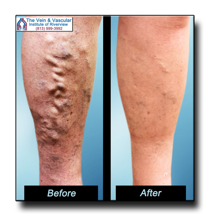 Riverview FL Vein Surgery Before and After Pictures