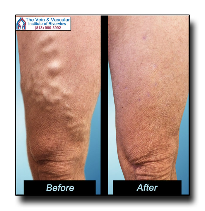 Vascular Surgery for Varicose Veins Before and After Pictures Riverview FL
