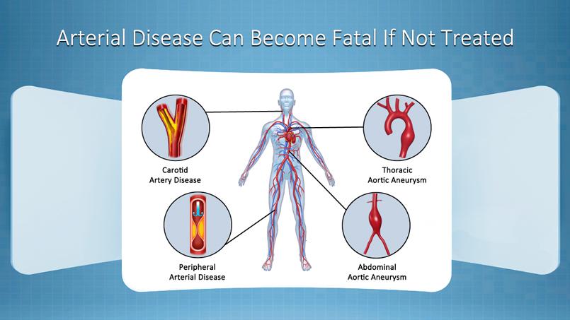 Arterial Disease Examples