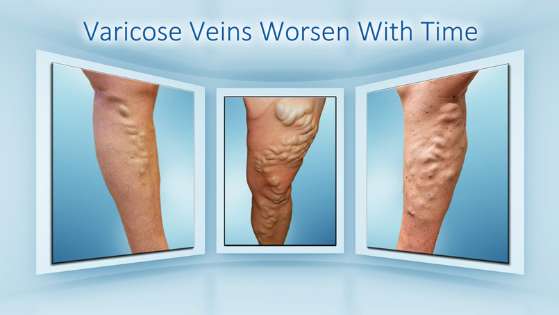 Riverview Varicose Veins