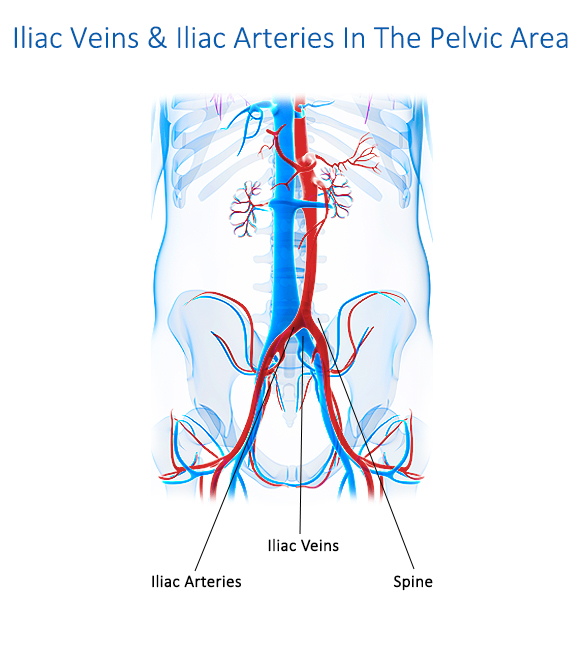 Iliac Veins and Iliac Arteries