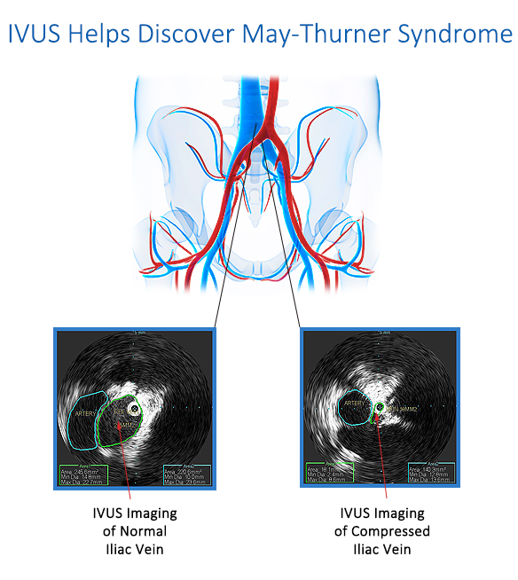 May-Thurner Syndrome Diagnosis Using IVUS Imaging