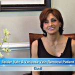 Riverview Spider Veins Treatment and Varicose Vein Removal Review