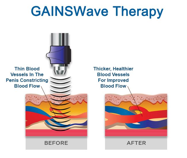 GAINSWave Therapy For ED Treatment Riverview Florida