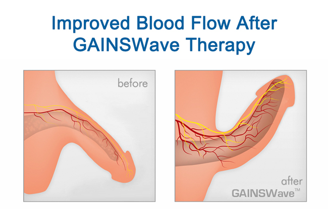 GAINSWave Treatment Riverview Florida Results