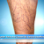 Spider Vein Treatment in Riverview FL Performed by The Best Spider Vein Specialists