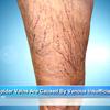 Spider Vein Treatment in Riverview FL Performed by The Best Spider Vein Specialists
